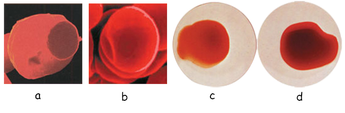 red-blood-cells03.3